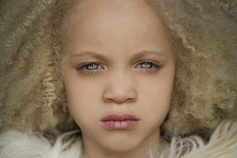 La niña albina que se roba todas las miradas en las redes