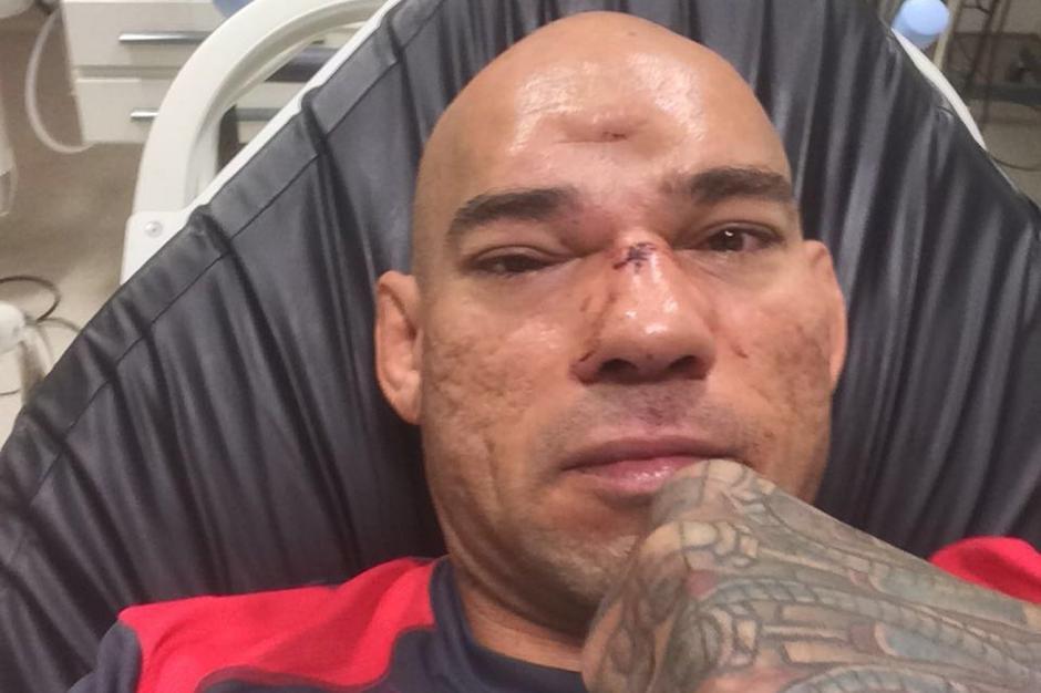 Peleador de MMA sufre hundimiento del cráneo tras rodillazo