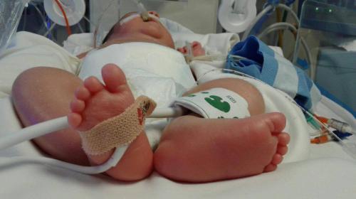David, un bebé que lucha por su vida