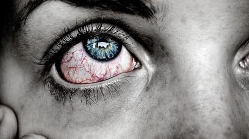 Razones por las que se te ponen rojos los ojos