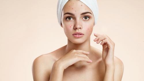 Acné en tu rostro podría revelar algunas deficiencias en tu organismo