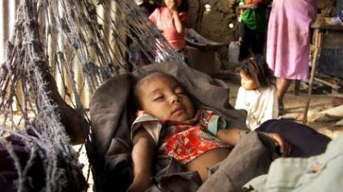 En 2017 fallecieron más de 110 niños por desnutrición