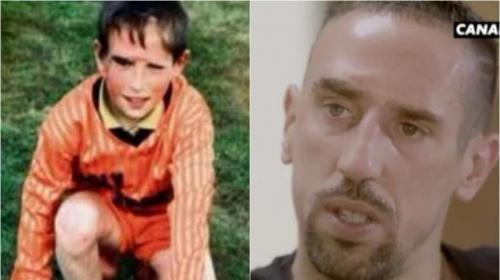 Ribery habló de su dura infancia y de la cicatriz que marcó su vida