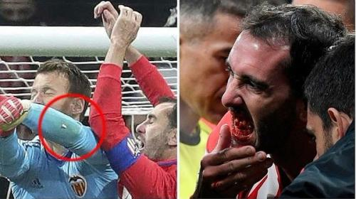 Bestial choque de Diego Godín que lo dejó sin varios dientes