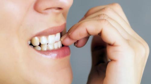 ¡Atención! Si te comes las uñas podrías sufrir de estas afecciones