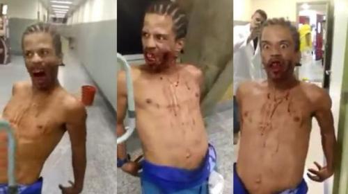 La verdad detrás del supuesto zombie brasileño