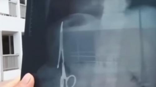 ¡Insólito! Hombre vivió 18 años con unas tijeras en el estómago