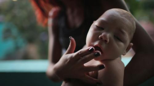 Según expertos, el zika podría provocar defectos oculares en bebés